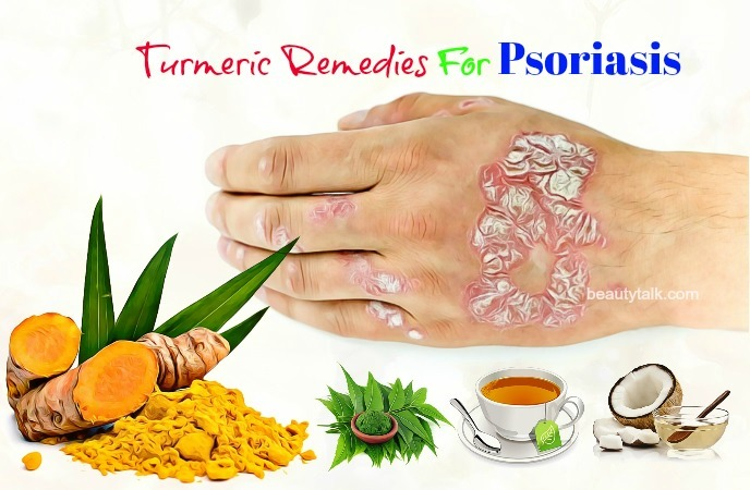 for psoriasis