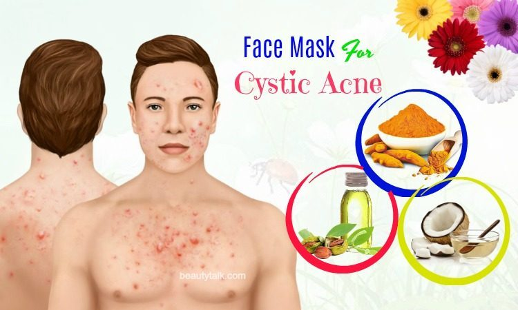diy face mask for cystic acne