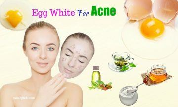 how to use egg white for acne