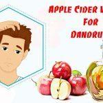 natural ways to use apple cider vinegar for dandruff
