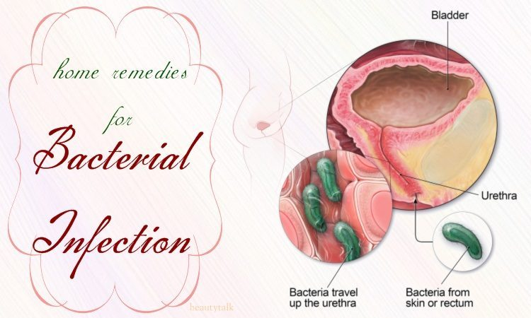 home remedies for bacterial infection in urine