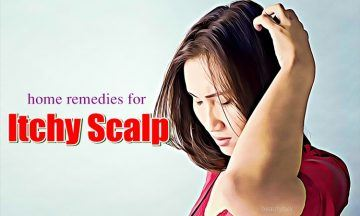 natural home remedies for itchy scalp