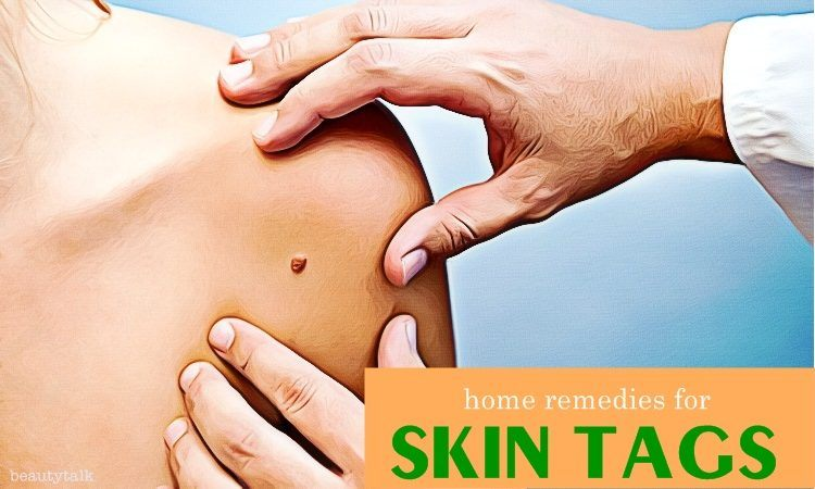 home remedies for skin tags on face, neck, armpits, buttocks & anus