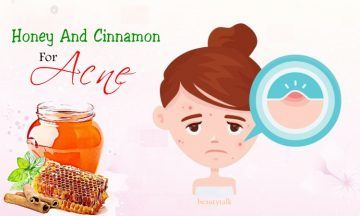 honey and cinnamon for acne: benefits, uses, and risks