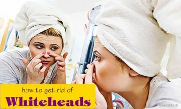 how to get rid of whiteheads on face