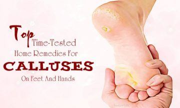 home remedies for calluses on feet