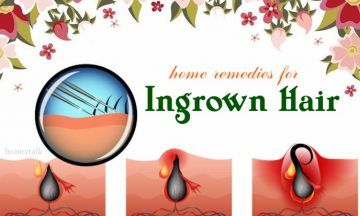 home remedies for ingrown hair on buttocks
